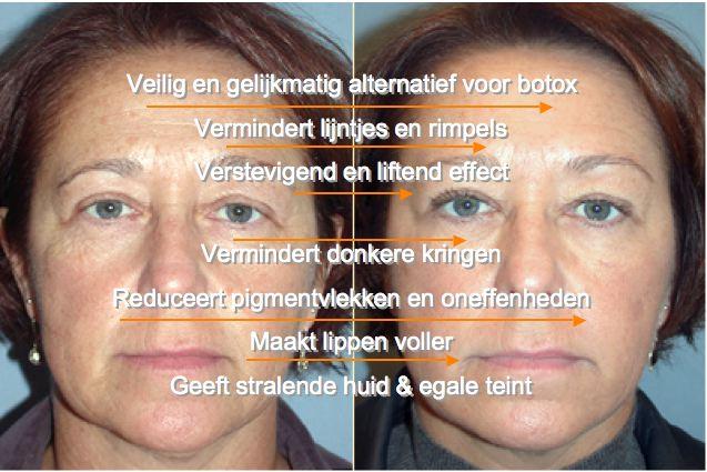 Reverta-face-it